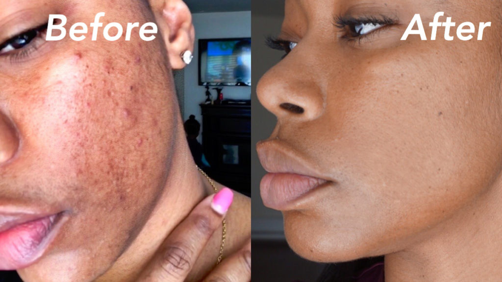 How to remove hyper pigmentation and dark marks from the skin using vitamin c