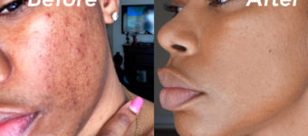 How I Removed My Hyper Pigmentation and Dark Spots From My Skin