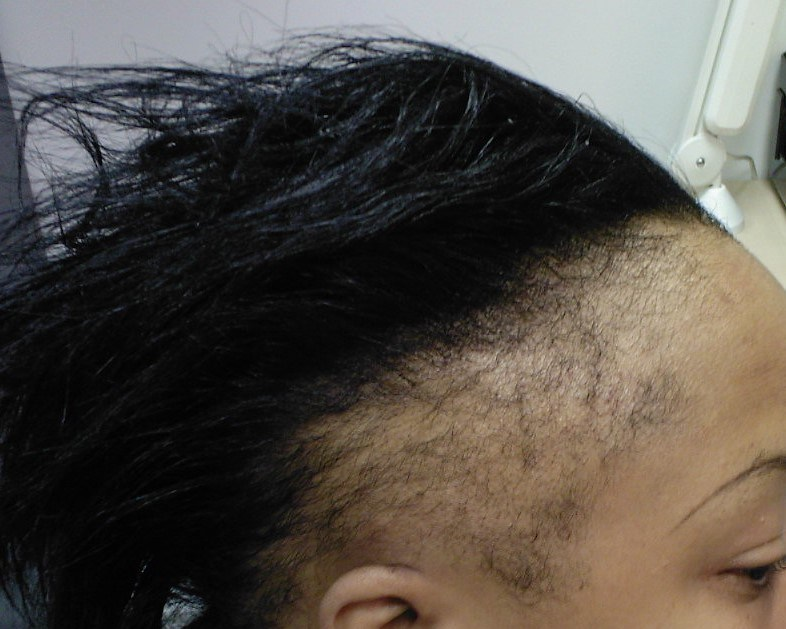 Top 10 reasons your edges are thinning and breaking